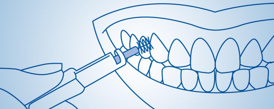 Interdental fırçanın doğru istifadəsi