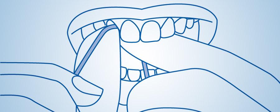 Diş sapının düzgün istifadəsi