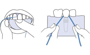 Faydalı yardımçılar - Təbii dişlər və ya implantlar üçün olsun: diş sapları bəzən əvəzedilməzdir